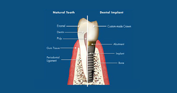 dental implant case study | Smile Again - Edmonds, WA Dentist